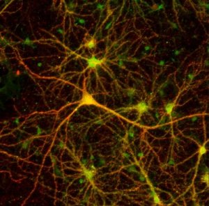 photo-neuron